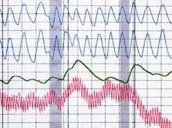 website photo polygraph chart